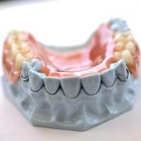Toulouse: Le prothésiste dentaire travaillait «en bouche»…