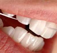 A cause du fil dentaire, elle développe une infection du genou