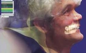 Conférence Dental Forum 2016 par JM Faudi : l'intégration du visage en 3D dans Exocad.